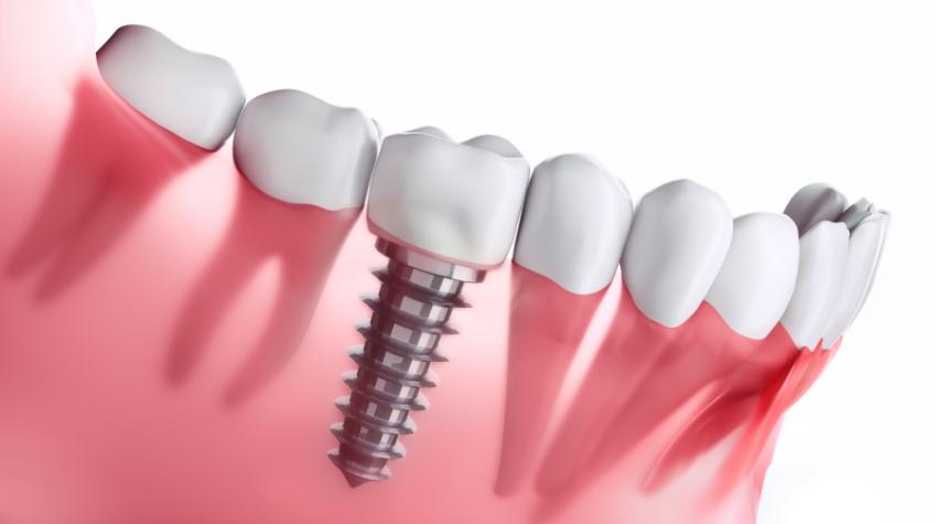 Dental Implants Southport Gold Coast - Southport- Starbright Dental